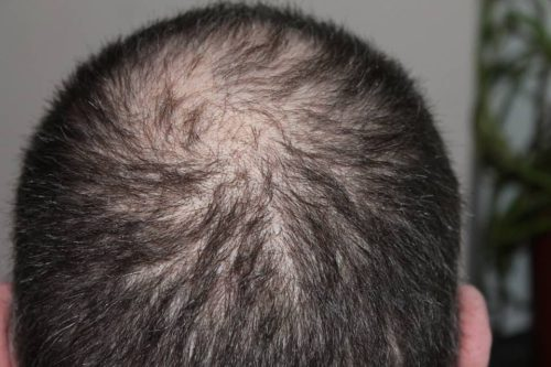 can msm cause hair loss - a guy that is balding